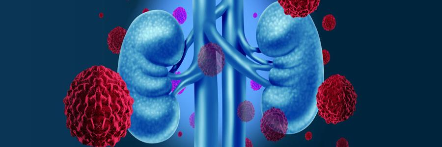 Kidney Transplant is a Finest Treatment Option for Kidney Failure