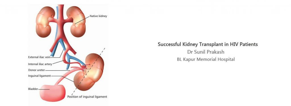 Best nephrology hospital in india