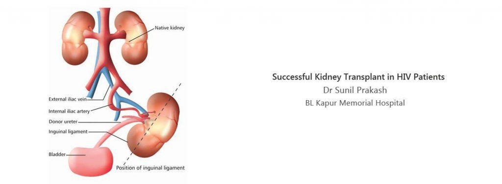 Kidney Specialist, Nephrologist in Delhi - Dr  Sunil Prakash
